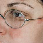 dioptrijski okviri alergija na nikal